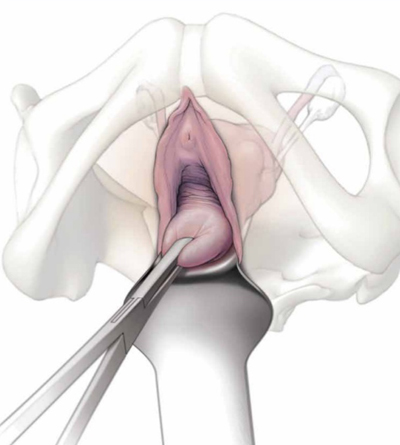 Non Descent Vaginal Hysterectomy