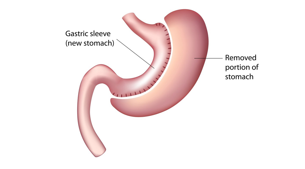 Sleev Gastrectomy Surgery Jalandhar
